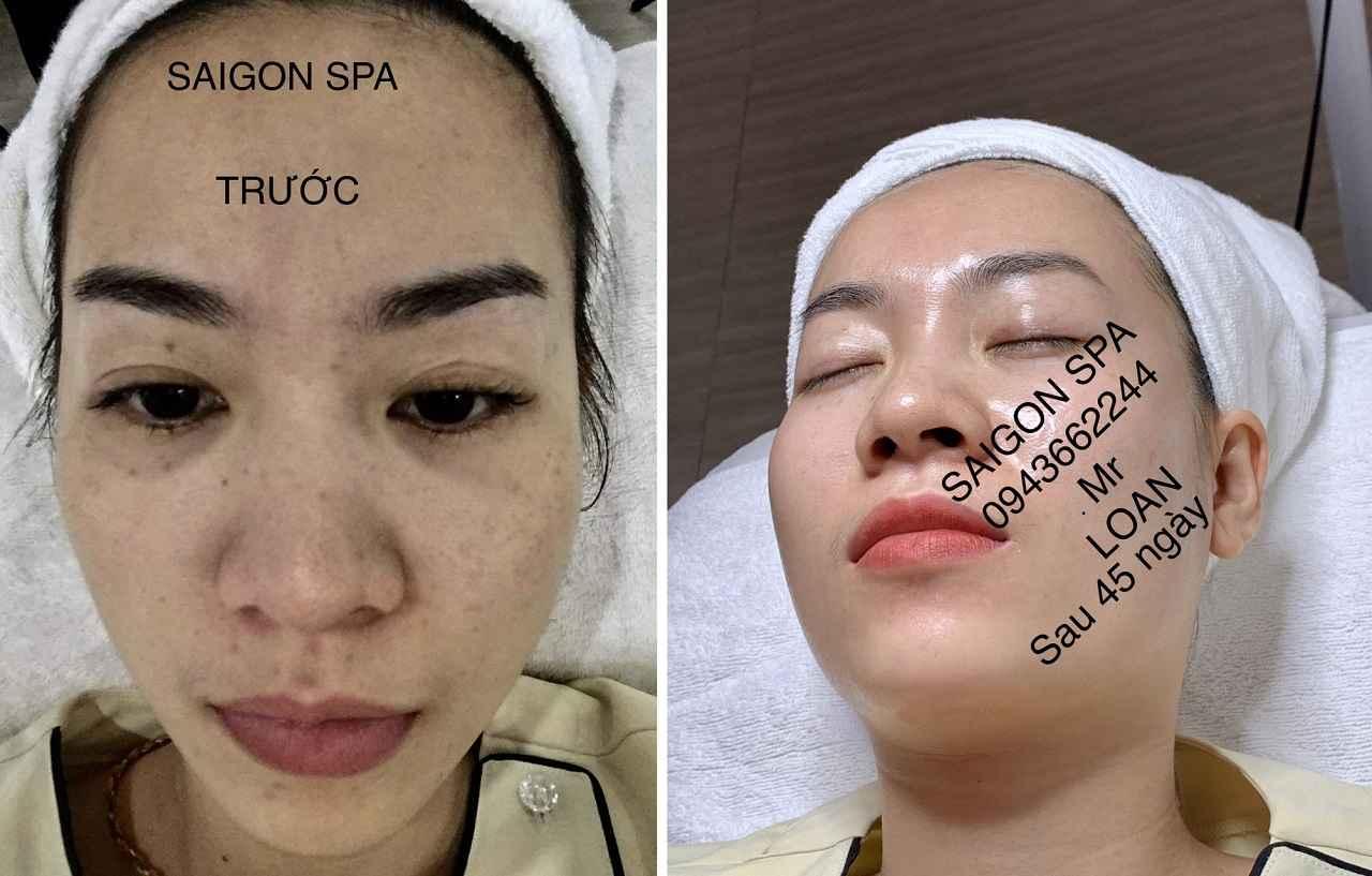 Trước và sau khi trị nám