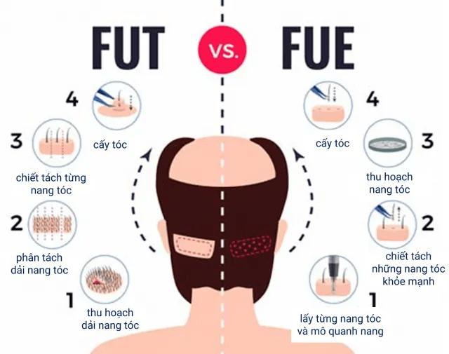So sánh cấy tóc FUE và cấy tóc FUT